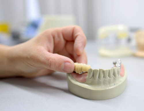 Dental Repair Can Work for All Implants